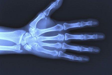 Рак костей: признаки и симптомы